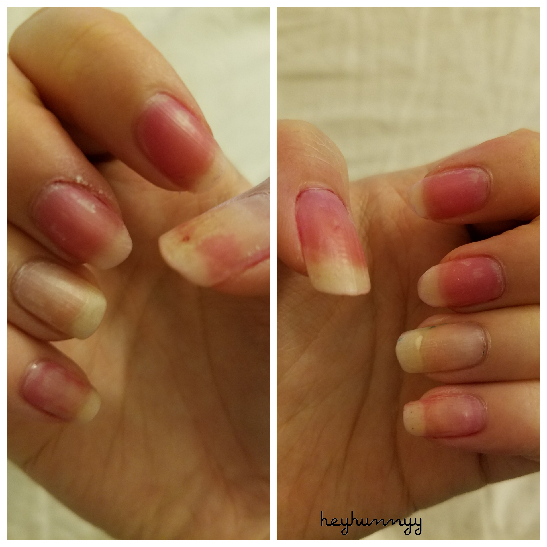 ::NAIL NIGHTMARE:: Innisfree Stained My Nails!!